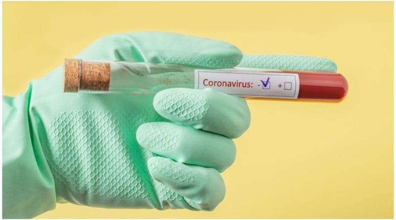 dengue covid 19 inmunidad