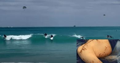 Niño de 9 años sobrevive ataque de tiburón en Miami Beach
